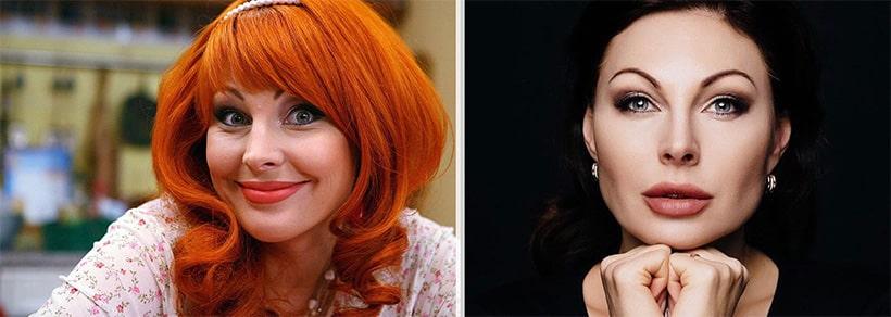 Наталья Бочкарева до пластики и после